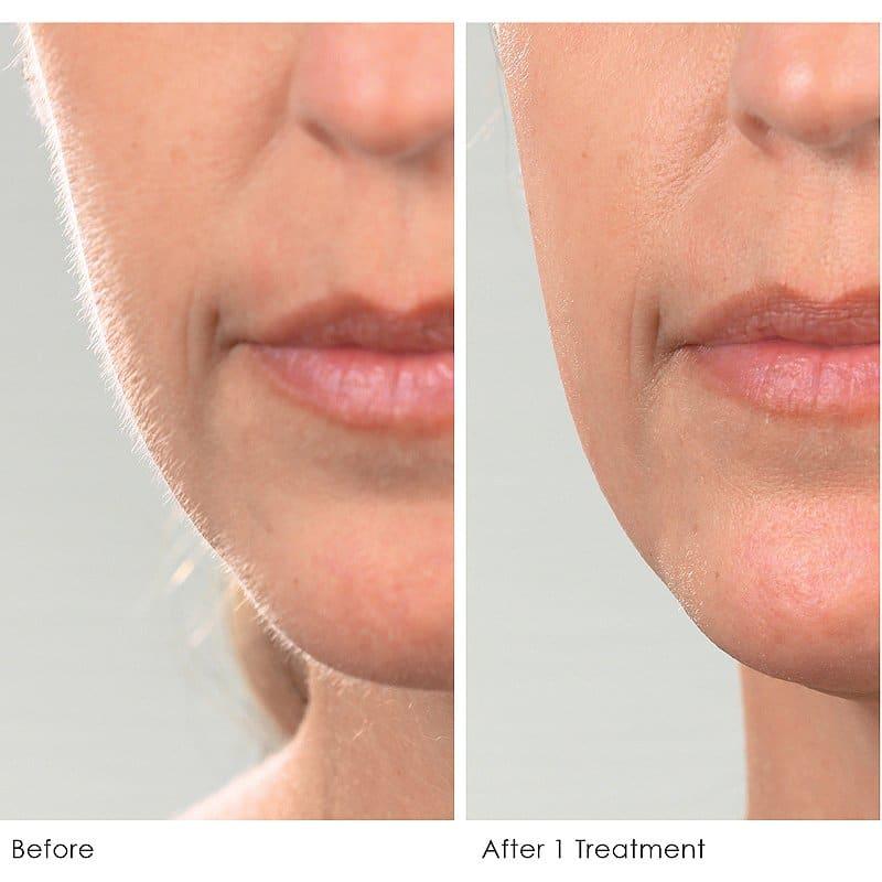 Dermaplaning smooth skin